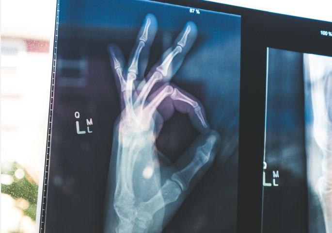 OK Zeichen als Handröntgenbild